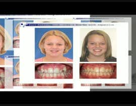 #1 cho create a video movie for before and after dental cases for Mall advertising bởi ahmadmhmood