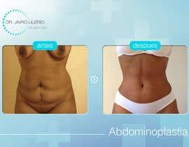 #24 cho Modificar algunas Imágenes de Antes y Despues de Cirugias Plasticas bởi LuisEduarte